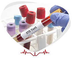 Confidential STD Testing in Ruther Glen and Alexandria, VA